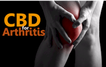 research on how CBD works for arthritis
